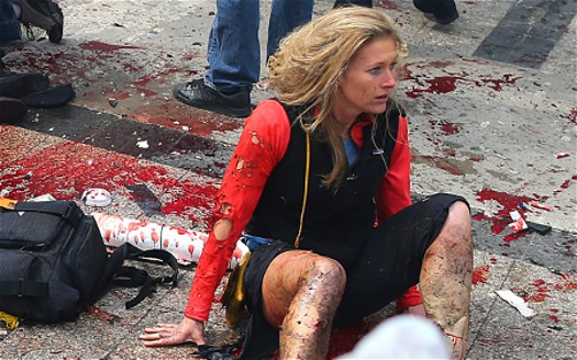 Bombing victim Nicole Gross wasn't in the direct line of the blast, but she still suffered two breaks in her left leg, a right ankle fracture, and a severed Achilles' tendon. (Boston Globe photo, reprinted in The Telegraph, UK.)